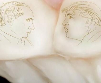 Путин и Трамп на зубах у сочинца (видео)